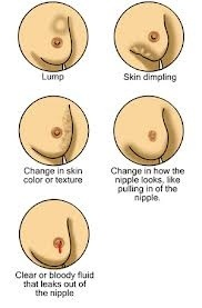 Breast cancer examination (3/3)